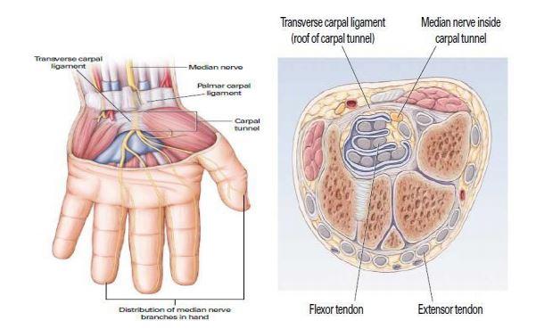 sakit di telapak tangan (carpal tunnel syndrome)